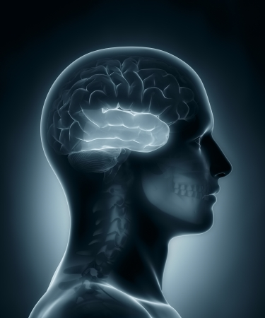 medical scans: Temporal lobe medical x-ray scan