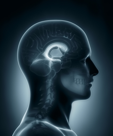 ventricles: Ventricles medical x-ray scan