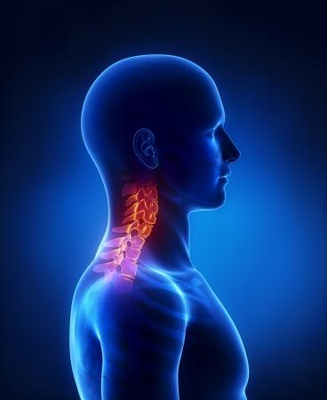 the neck: Rachide cervicale vista laterale Archivio Fotografico