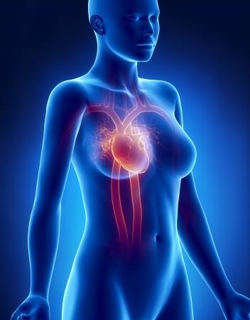 myocardium: Femminile CUORE anatomia raggi x vista laterale