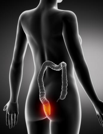 Weiblich HEMORRHOIDS Konzept Anatomie x-ray Rückansicht