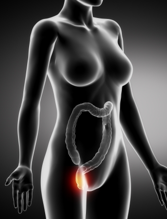 cecum: Female  HEMORRHOIDS concept x-ray lateral view Stock Photo