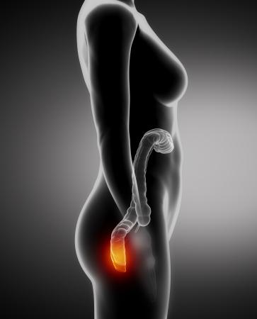 Female  HEMORRHOIDS concept x-ray left view