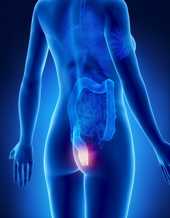 Weiblich HEMORRHOIDS Konzept x-ray Rückansicht