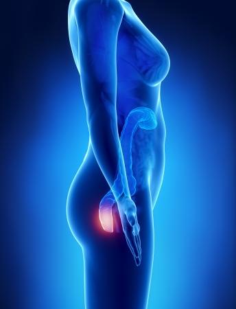 ileum: Female HEMORRHOIDS concept x-ray left view Stock Photo