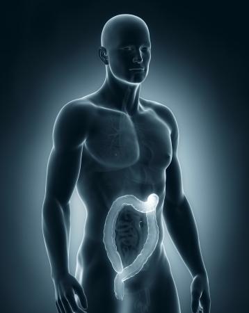 hemorrhoids: Man colon natomy