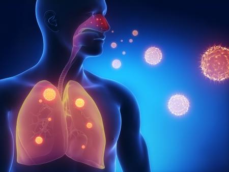Influenza-Infektion