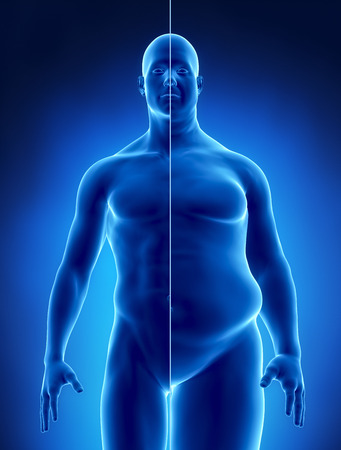 fat person: Obesity concept in x-ray