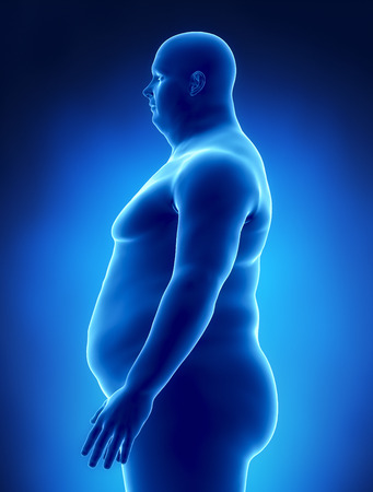 Obesity concept in x-ray left view