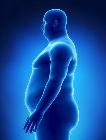 X 線左ビューで肥満の概念 写真素材