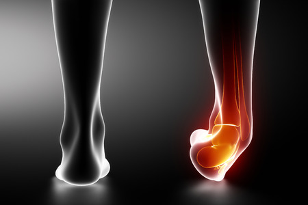 Sprained ankle black x-ray photo