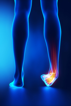 Sprained ankle blue x-ray photo