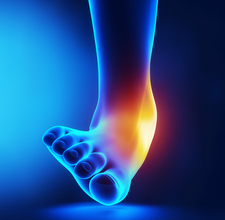sprained: Sprained ankle blue x-ray
