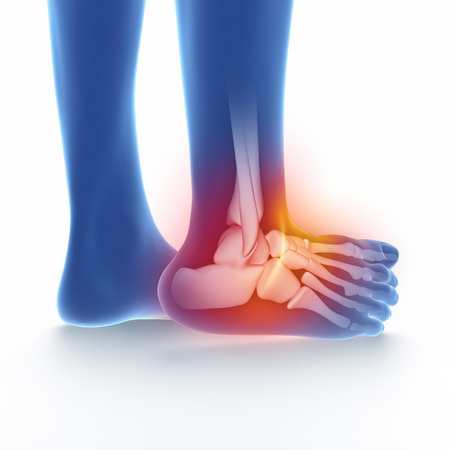 sprained: Sprained ankle blue on white isolated Stock Photo