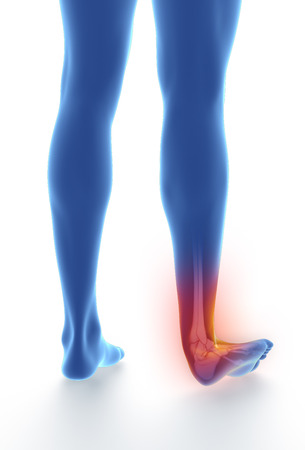 sprained joint: Sprained ankle blue on white isolated Stock Photo