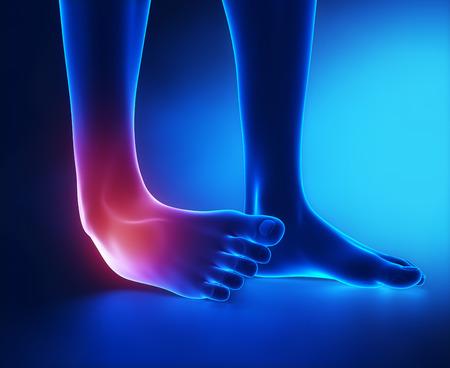 足関節捻挫ブルー x 線