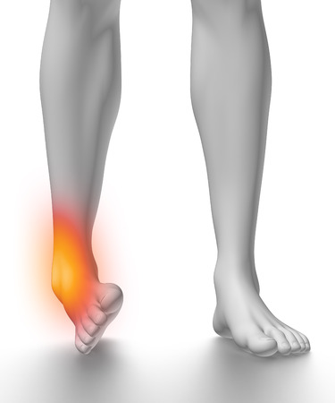 sprained joint: Sprained ankle on white