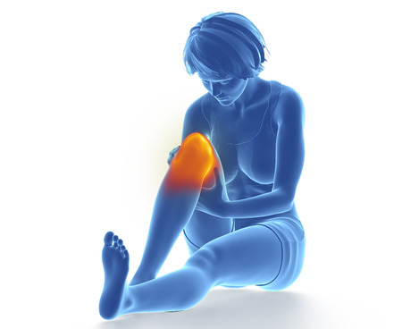 sprained joint: Female knee injured Stock Photo