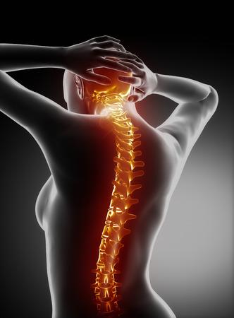 woman back of head: Female backbone anatomy - cervical spine pain Stock Photo