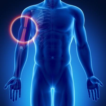 humerus: Male bone anatomy humerus broken