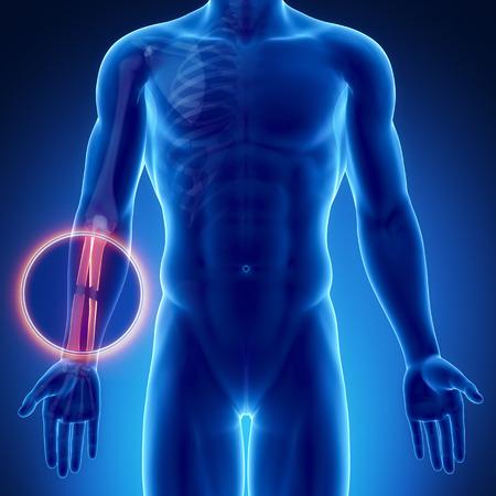 torment: Male bone anatomy radius ulna broken