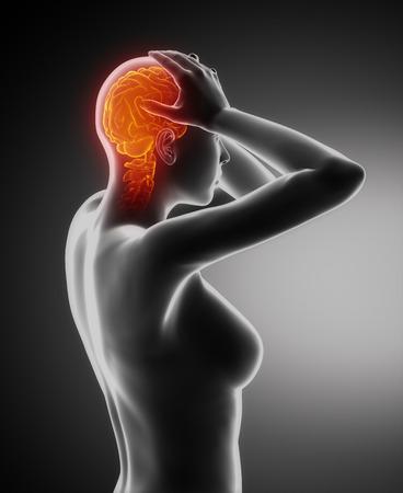 Headache migraine concept photo
