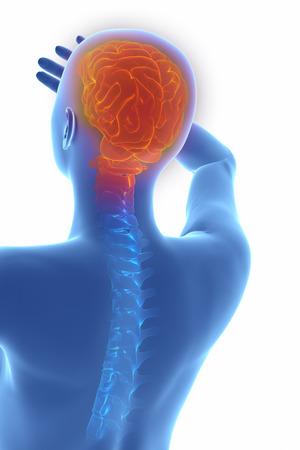 trastorno: Mujer cefalea trastorno neurol�gico migra�a en blanco Foto de archivo
