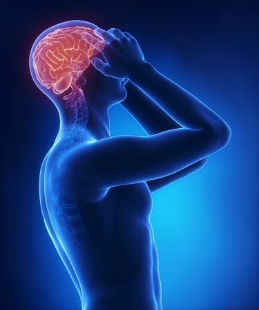 Headache on blue x-ray photo