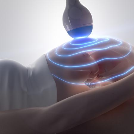 3D-Ultraschall während der Schwangerschaft Konzept Standard-Bild - 38668023