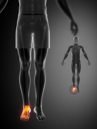 talus: ANKLE black x--ray bone scan Stock Photo