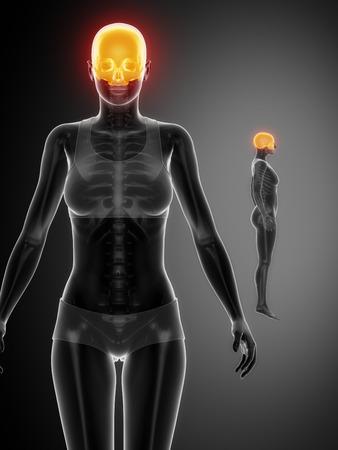 axial: CRANIUM black x--ray bone scan
