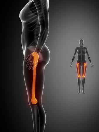 flail: FEMUR black x--ray bone scan