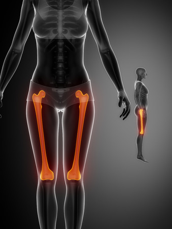 perineum: FEMUR black x--ray bone scan
