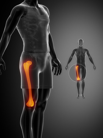 flexion: FEMUR black x--ray bone scan