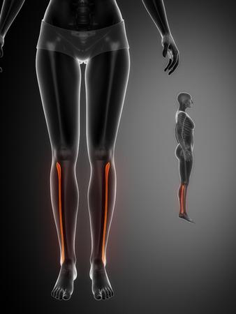 pubis: FIBULA black x--ray bone scan