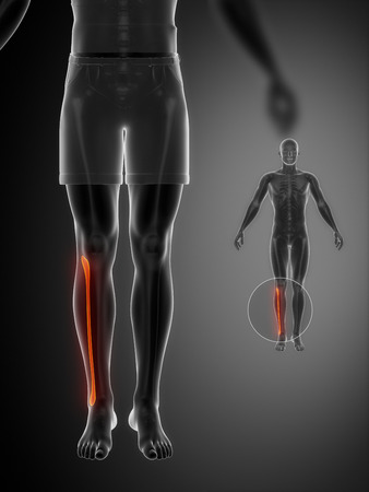 perineum: FIBULA black x--ray bone scan