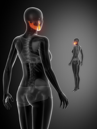 mandible: MANDIBLE black x--ray bone scan