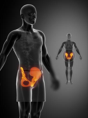 PELVIS black x--ray bone scan photo