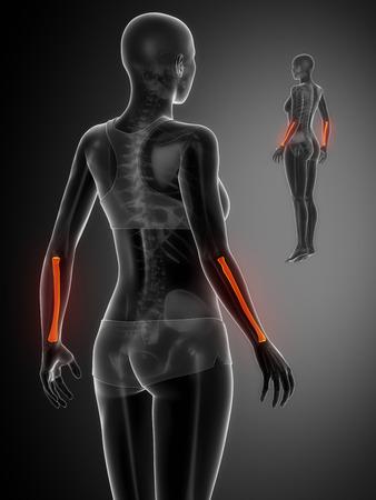 radius: RADIUS  black x--ray bone scan Stock Photo