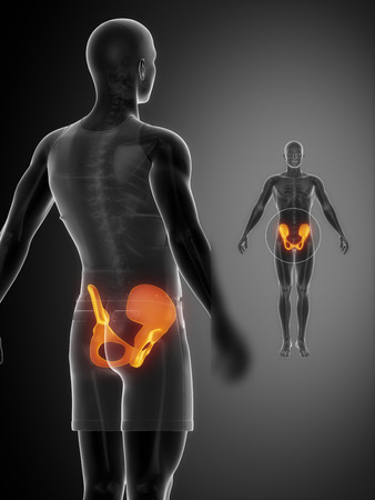 flail: PELVIS black x--ray bone scan