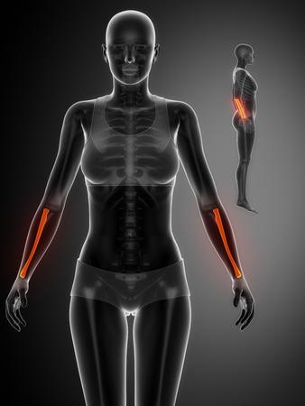 raggio: RADIUS nero x - scintigrafia ossea ray Archivio Fotografico