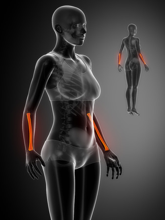 flail: RADIUS  black x--ray bone scan Stock Photo