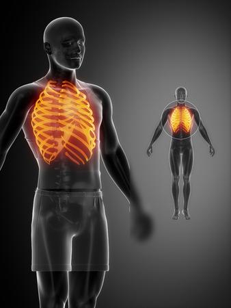 collarbone: RIBS  black x--ray bone scan