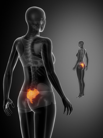 flail: SACRUM black x--ray bone scan Stock Photo
