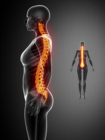척추 블랙 X - 레이 뼈 스캔