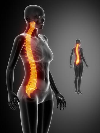 intervertebral disc: SPINE black x--ray bone scan