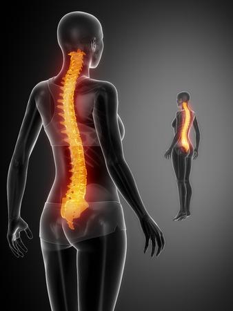 paraplegia: SPINE black x--ray bone scan