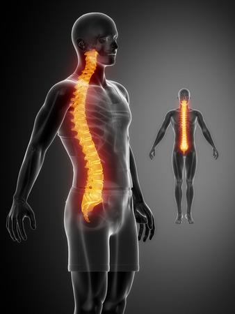 coccyx pain: SPINE black x--ray bone scan