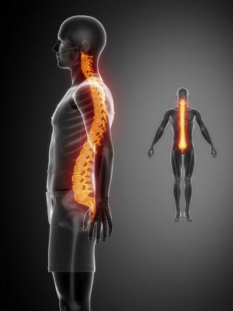SPINE black x--ray bone scan