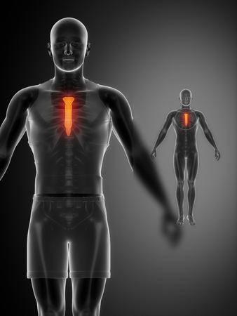 collarbone: STERNUM black x--ray bone scan Stock Photo
